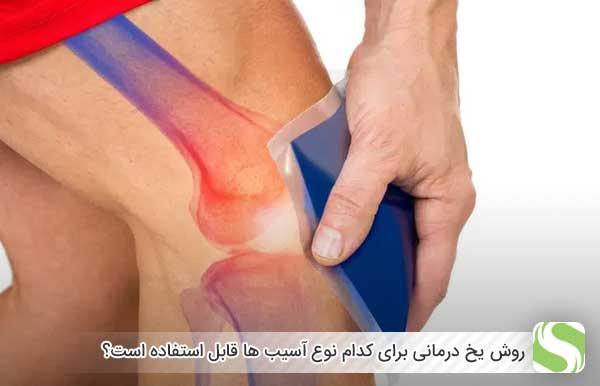 روش یخ درمانی برای کدام نوع آسیب ها قابل استفاده است؟ - اندیشه سبز